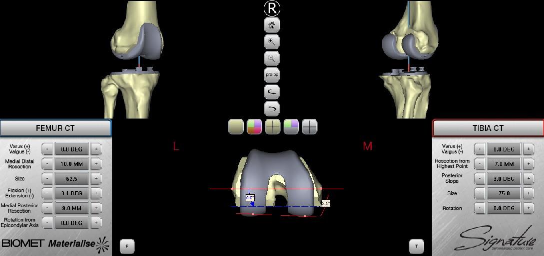 arthroplastiki-robotiki