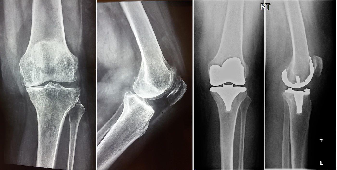 Αρθροπλαστική γόνατος βασισμένη στη ρομποτική τεχνολογία