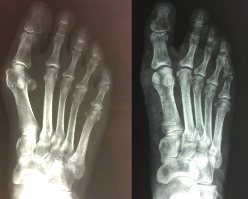 Χειρουργική αποκατάσταση του βλαισού μεγάλου δακτύλου (κότσι)
